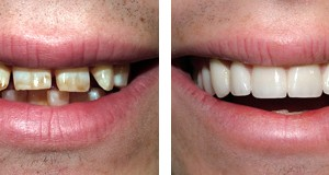 We are committed to providing you with exceptionally high quality dental treatments for fastbraces with reviews