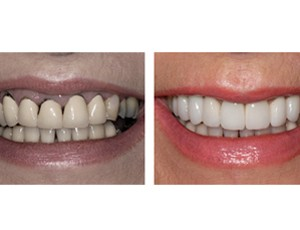 improved affordable dental implants