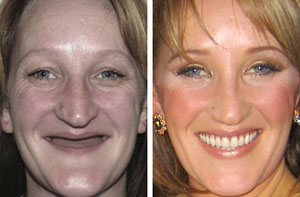 new dentures see before and afters