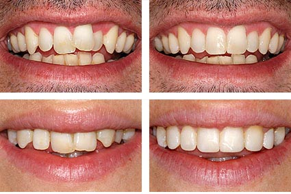 looking for tooth replacements get healthier