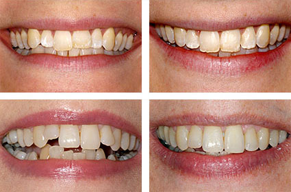 The Perfect Smile Ltd and aesthetic dental treatments free consultations