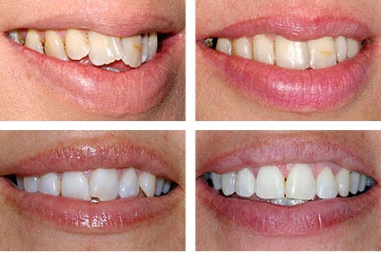 why not try our teeth straightening using the modern and up to date technology