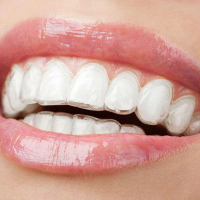 cosmetic braces using our modern and up to date technology
