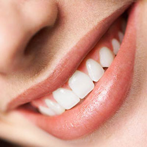 The Perfect Smile Ltd and white braces at the lowest price online
