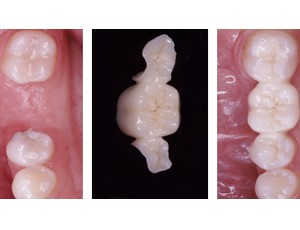 are you looking for bridges for teeth using the most up-to-date technology