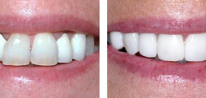 zirconia crowns using the current technology