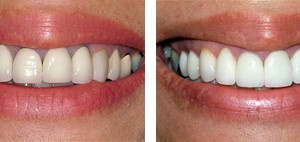 We are committed to providing you with exceptionally high quality dental procedures for crowns on teeth