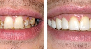 the popular choice porcelain crowns