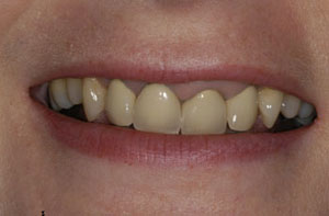 Westbourne Green teeth replacements