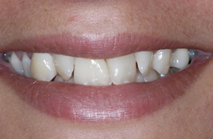 gold teeth removed Chalkwell