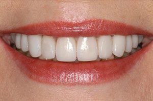 reduced teeth bleaching