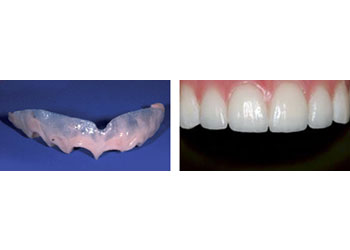 temporary veneers using the latest dental technology