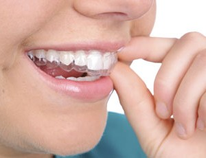 Upper Holloway invisalign braces
