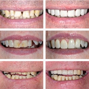 Stevenage permanent dentures