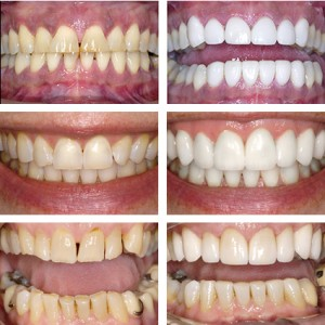 tooth bleaching using our modern technology