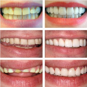Incognito lingual braces see before and after images