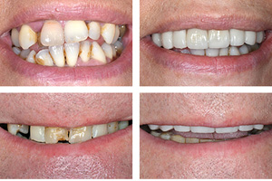 cheap veneers Croydon