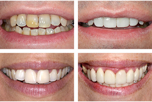 Chapel End composite veneers