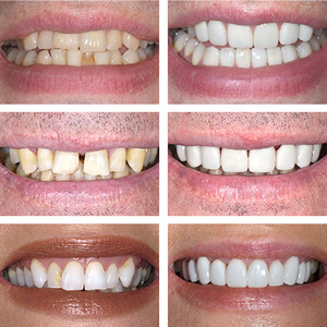 porcelain veneers content patients