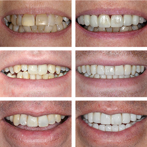 the perfect tooth veneers better dental clinicians