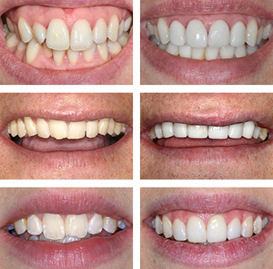 huge choice of eMax veneers