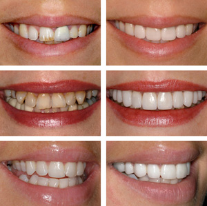teeth veneers pleased and happy patients