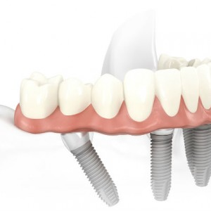 do you require all on 4 dental implants