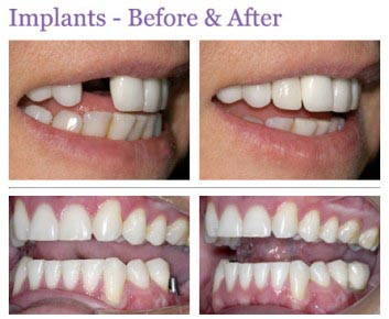 all on four dental implants using the modern and up to date dental technology