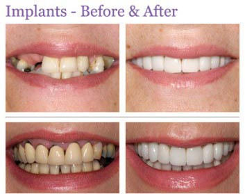 do not go anywhere else for your same day dental implants