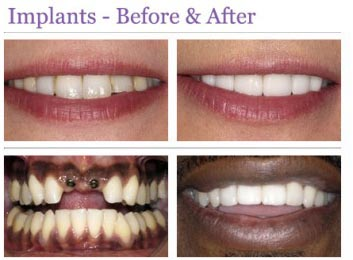 save pounds on tooth implants happy patients