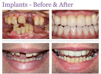 save pounds on denture implants
