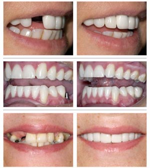 save money buying full dental implants South England