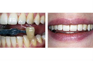 quick instant teeth whitening using the modern dental technology