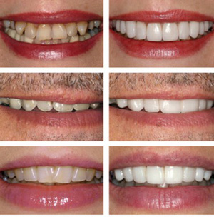 search opalescence teeth whitening