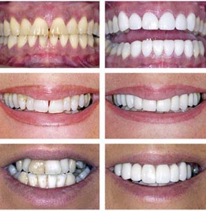 bright white teeth whitening using the modern and up to date dental technology