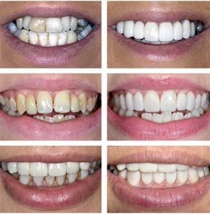 less expensive BriteSmile teeth whitening using our most recent dental technology
