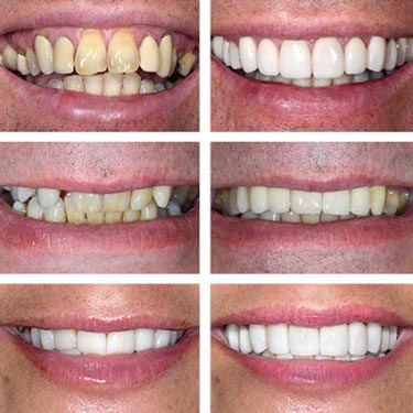 learn about whitening