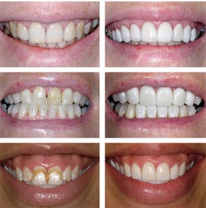 whitening trays using the most up-to-date dental technology