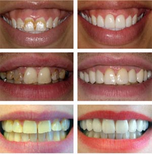 teeth laser whitening see before and afters