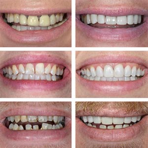 save money by using Zoom laser teeth whitening