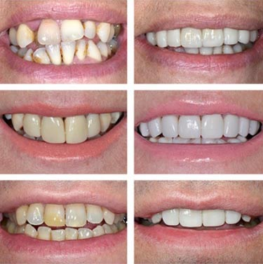 the perfect Zoom tooth whitening friendly service