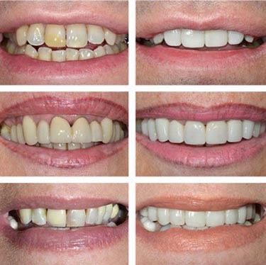 hydrogen peroxide teeth whitening 2015