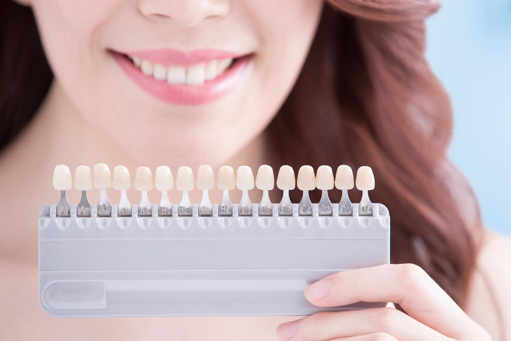 cosmetic teeth veneers pay monthly