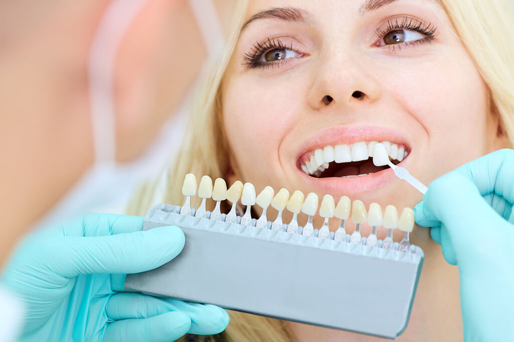 veneers for your teeth
