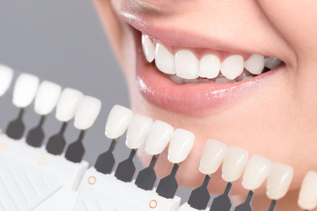 whitening veneers scientifically proven