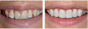 Cosmetic Dentistry from Perfect Smile