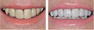 Teeth Whitening by Perfect Smile