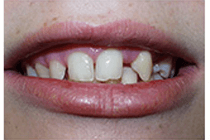 Before Tooth Decay Treatment from Perfect Smile