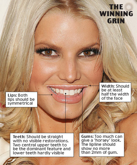 Perfect Smile offers Hollywood Smile Makeovers