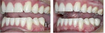 implant 7